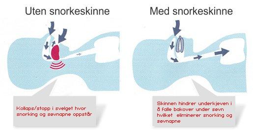 snorkeskinne.jpg